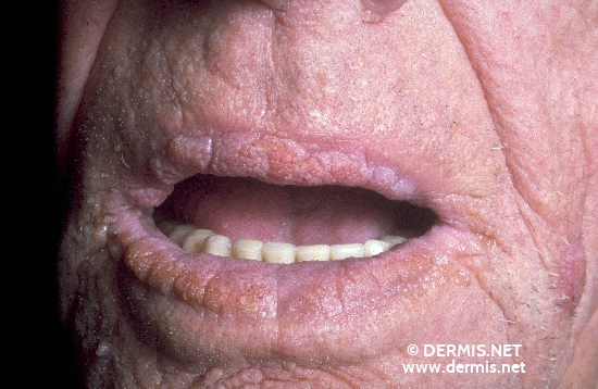 localisation: lips (skin) diagnosis: Acanthosis Nigricans Maligna
