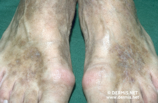 localisation: back of the feet diagnosis: Acroangiodermatitis Mali