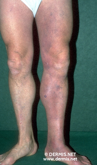 localisation: legs diagnosis: Acrodermatitis Chronica Atrophicans Herxheimer