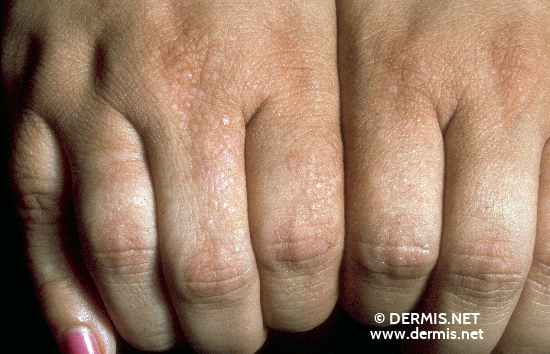 localisation: finger diagnosis: Focal Acral Hyperkeratosis