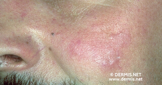 diagnosis: Lymphocytic Infiltration of the Skin Jessner-Kanof