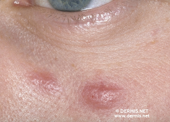localisation: cheek diagnosis: Lymphocytic Infiltration of the Skin Jessner-Kanof