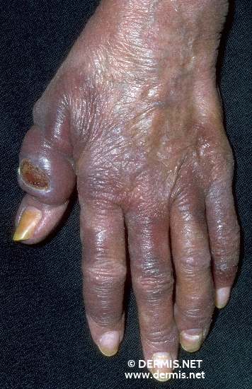 localisation: hands finger diagnosis: Mycosis Fungoides