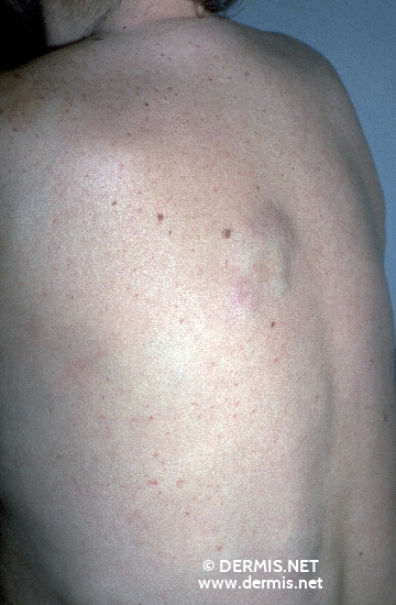 diagnosis: Subcutaneous T-Cell Lymphoma