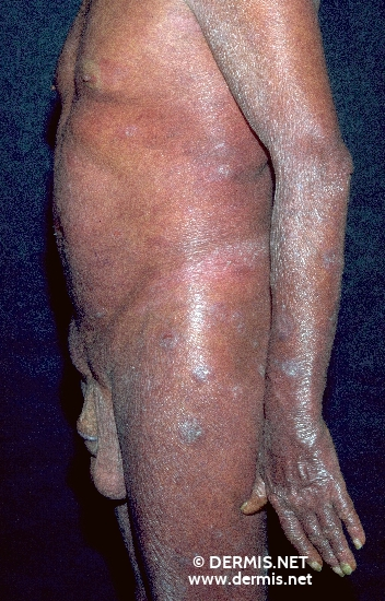 localisation: trunk arms diagnosis: Sezary Syndrome