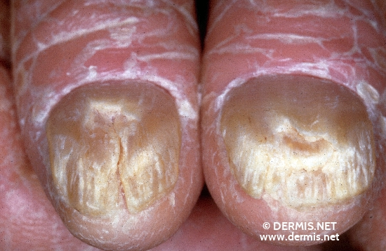 localisation: finger fingernail diagnosis: Sezary Syndrome