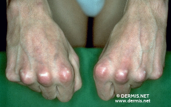 localisation: digital metacarpo-phalangeal joint diagnosis: Calcinosis Cutis Mixed Connective Tissue Disease