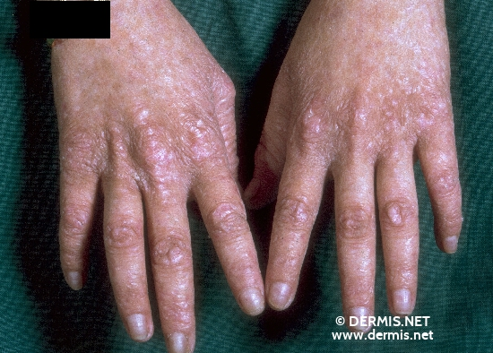 localisation: hands diagnosis: Congenital Dyskeratosis