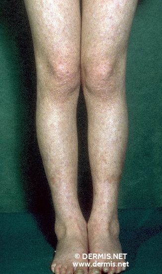 localisation: Beine Diagnose: Dyskeratosis congenita