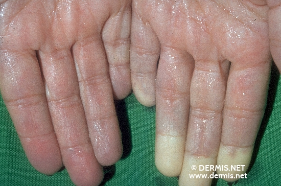localisation: palms diagnosis: Raynaud's Disease