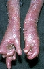 localisation: hands, diagnosis: Epidermolysis Bullosa Hereditaria