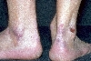 localisation: ankle joint, diagnosis: Epidermolysis Bullosa Acquisita