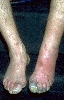 localisation: toe, diagnosis: Thrombangiitis obliterans