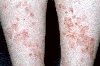 localisation: lower leg, diagnosis: Disseminated Superficial Actinic Porokeratosis