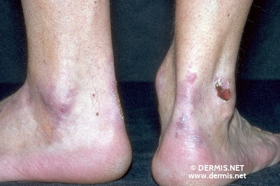 localisation: ankle joint diagnosis: Epidermolysis Bullosa Acquisita