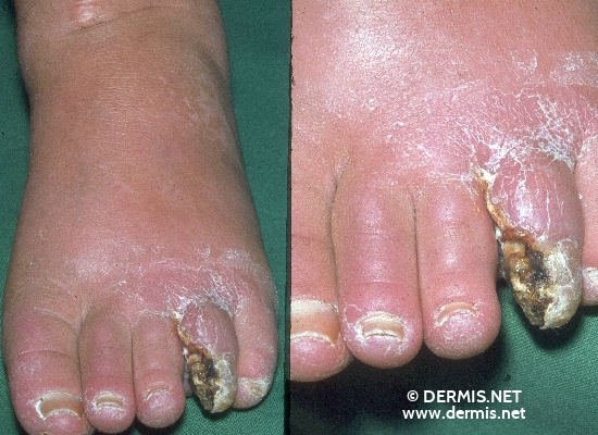 localisation: toe diagnosis: Thrombangiitis obliterans