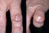 localisation: digital proximal interphalangeal joint, diagnosis: Chronic Polyarthritis