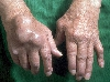 localisation: back of the hands, diagnosis: Chronic Polyarthritis