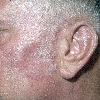 localisation: ear, cheek, diagnosis: Discoid Lupus Erythematosus (DLE)