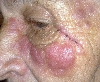 localisation: face, diagnosis: Pseudo-Lymphoma (other types)