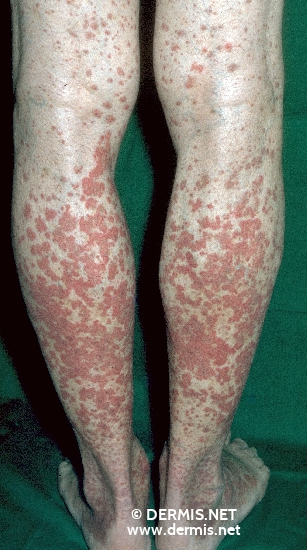 localisation: legs diagnosis: Purpura Rheumatica