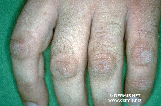 localisation: digital proximal interphalangeal joint diagnosis: Knuckle Pads, False