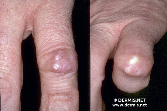 localisation: digital proximal interphalangeal joint diagnosis: Chronic Polyarthritis