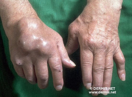localisation: back of the hands diagnosis: Chronic Polyarthritis