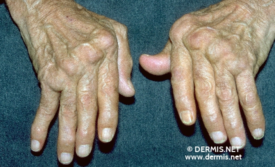 localisation: digital metacarpo-phalangeal joint digital proximal interphalangeal joint digital distal interphalangeal joint diagnosis: Chronic Polyarthritis