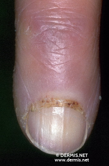 localisation: finger diagnosis: Progressive Systemic Scleroderma