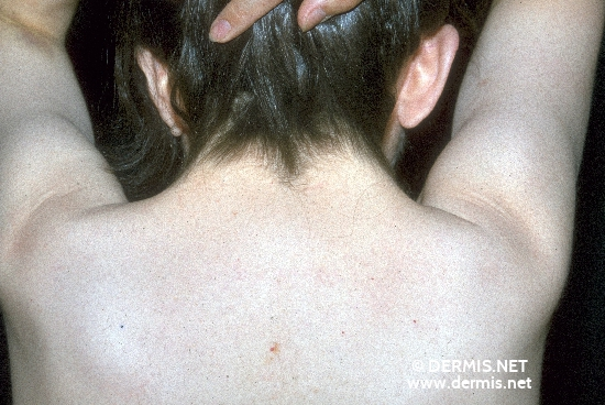 localisation: back of neck diagnosis: Ulrich-Turner Syndrome