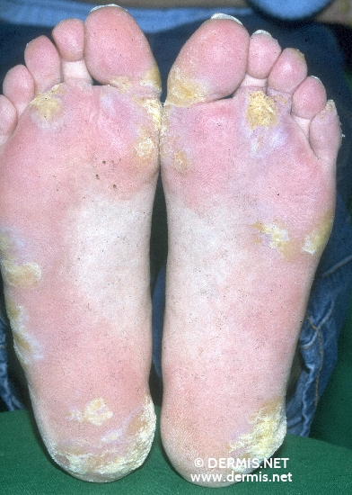 localisation: sole diagnosis: Lupus Erythematosus Tumidus