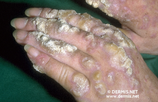 localisation: hands diagnosis: Lupus Erythematosus Tumidus