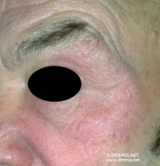 localisation: around the eyes diagnosis: Granulomatous Slack Skin
