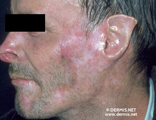 localisation: peri-oral ear cheek nose diagnosis: Discoid Lupus Erythematosus (DLE)