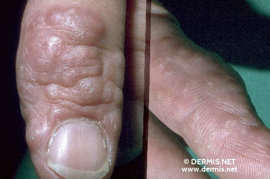 localisation: finger diagnosis: Granuloma Annulare