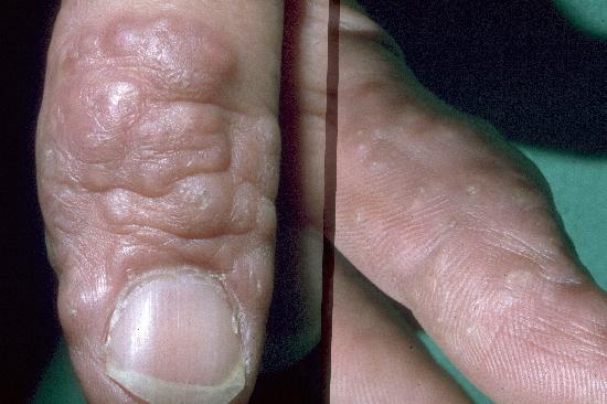 Granuloma annulare fingers