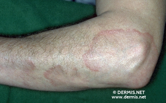 localisation: lower arms diagnosis: Granuloma Annulare