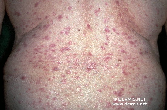 La maladie le psoriasis de quoi lui se manifeste