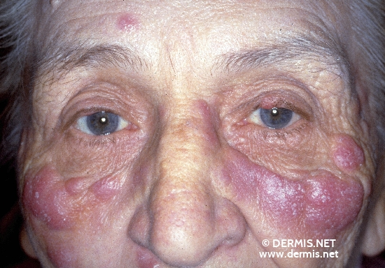 localisation: face diagnosis: Pseudo-Lymphoma (other types)