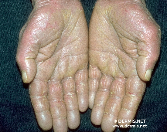 localisation: hands palms diagnosis: Sezary Syndrome