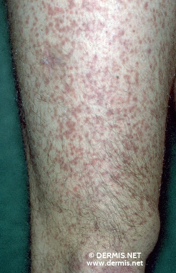 localisation: upper leg diagnosis: Urticaria Pigmentosa