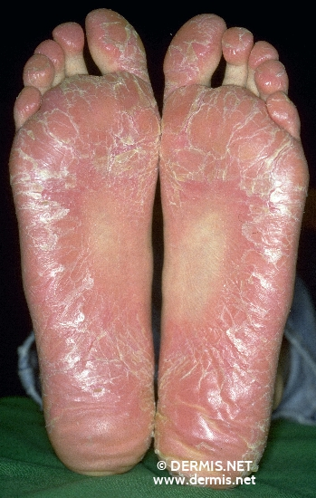 localisation: sole diagnosis: Dermatosis Palmoplantaris Juvenilis