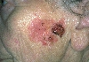 localisation: cheek, diagnosis: Bowen's Carcinoma