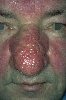 localisation: nose, diagnosis: Rosacea, Rhinophyma