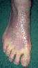 localisation: back of the feet, diagnosis: Acrodermatitis Chronica Atrophicans Herxheimer