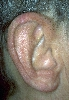 localisation: rim of the heilx, diagnosis: Chondrodermatitis Nodularis Chronica Helicis (Winkler)