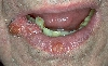 localisation: lips (skin), diagnosis: Carcinoma of Lip