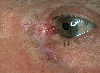 localisation: angle of the eye, diagnosis: Radiodermatitis, Chronic, Lentigo Maligna