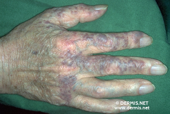 localisation: finger diagnosis: Sarcoidosis, Small Nodular Type